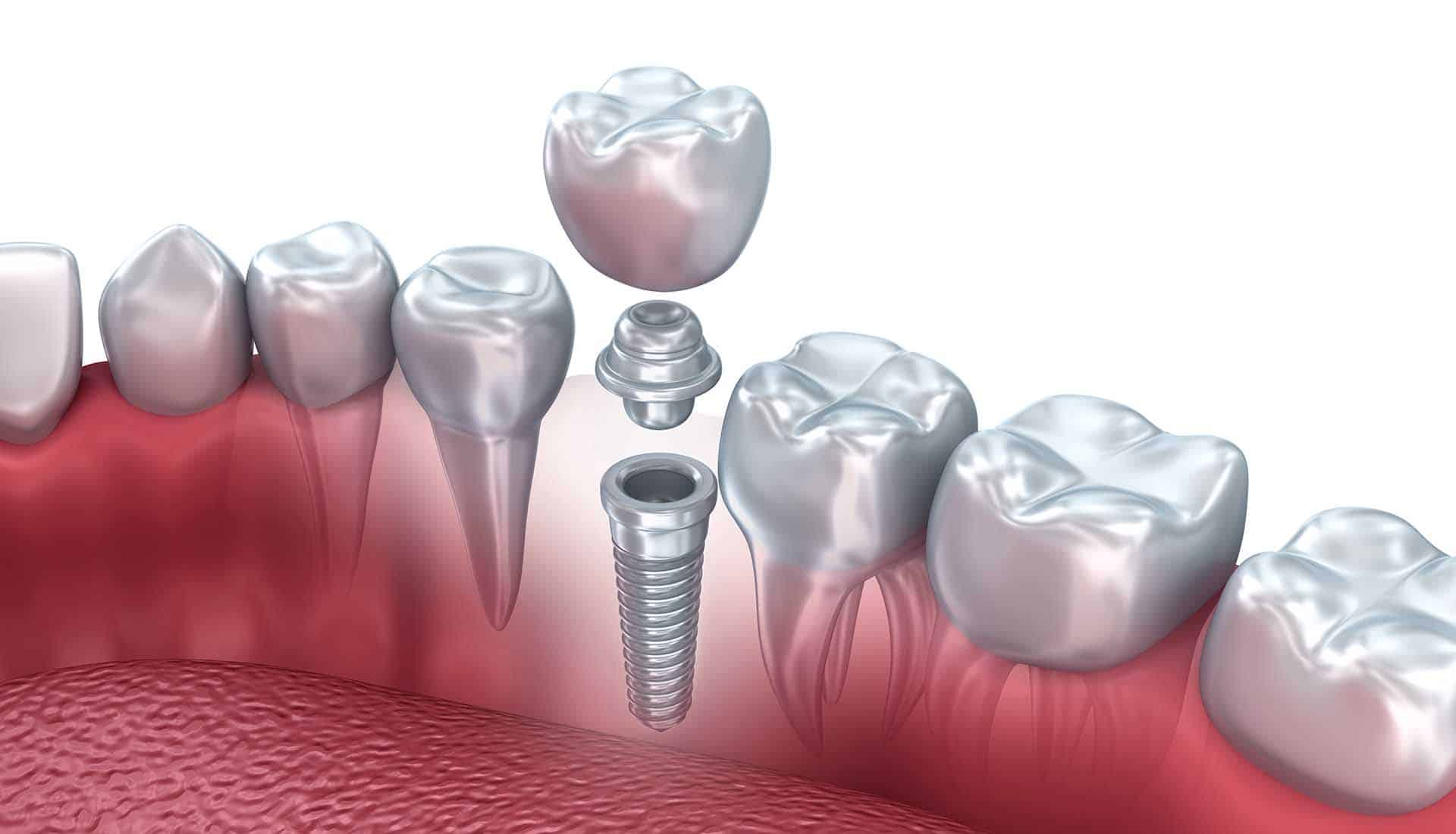 Tooth human implant, 3d illustration.