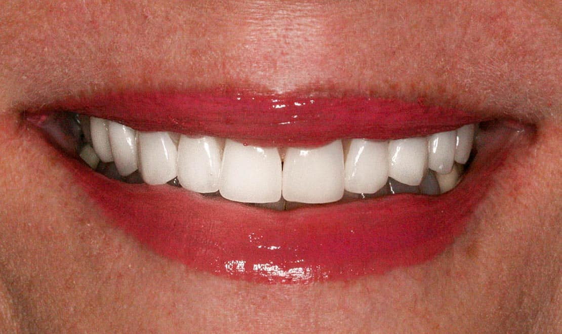 After dental veneers.