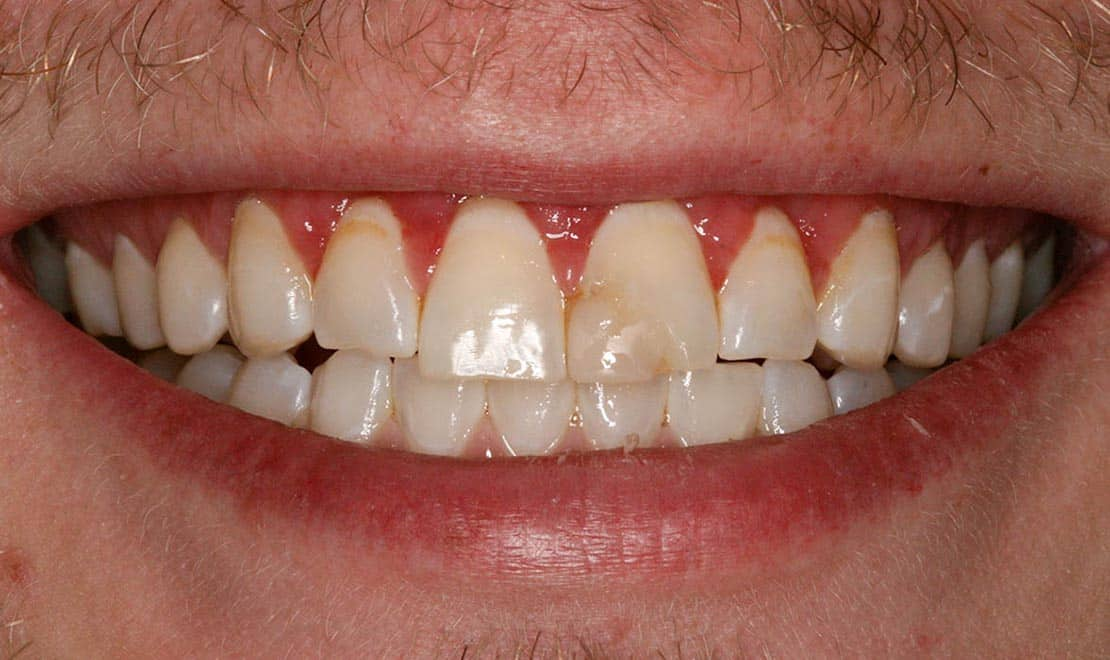 Dental veneers. Before photo.