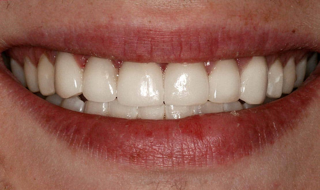 Dental veneers. Atfer photo.