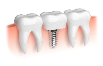 Implanta and Bone Grafting Atlanta GA
