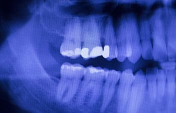 Tooth X Ray